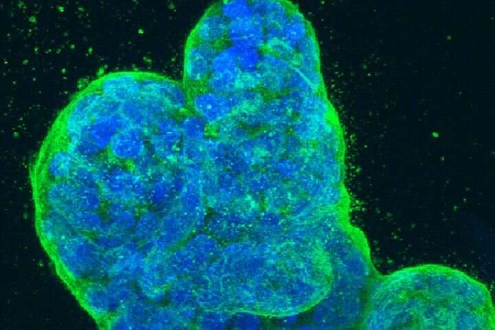Spread of breast cancer linked to newly discovered RNA splicing mechanism